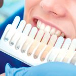 composites dentales
